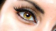 حلقه های سیاه اطراف چشم را کاملا حرفه ای محو کنید!