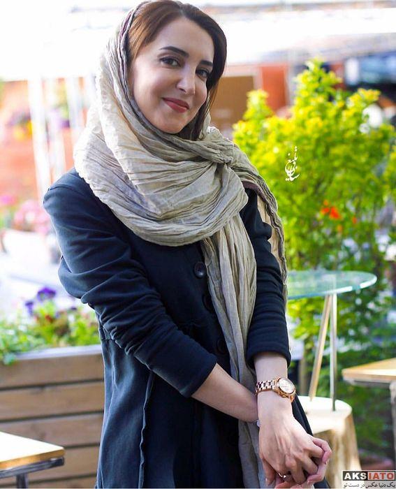 فلج شدن فک سحر جعفری جوزانی به خاطر اشتباه پزشکی + فیلم
