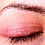 درمان بیماری های چشم با استفاده از عسل