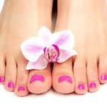 درمان قارچ انگشتان پاها در خانه