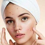 آیا پوست کثیف آکنه را بدتر می کند؟