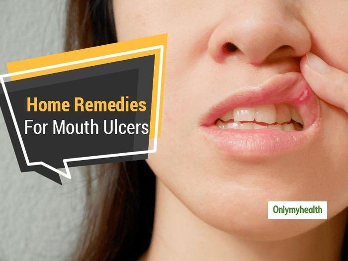 درمان سریع زخم های داخل دهان در خانه