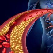 بیماری های قلبی عروقی چگونه ایجاد می شوند؟