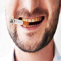 تخریب سریع دندان ها با سیگارکشیدن