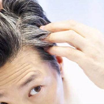 علت سفید شدن موها را بدانید