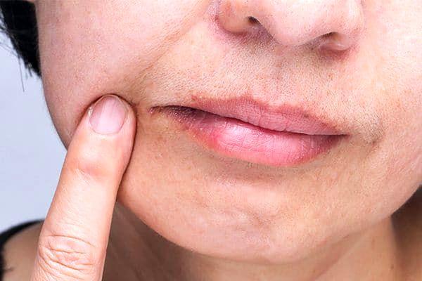 ترک خوردگی گوشه لب را با این روش درمان کنید