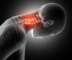 درمان قوز گردن با حرکات ورزشی