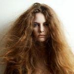 موی خشک و پوست سر خشک