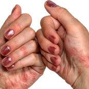 شیوع پسوریازیس چقدر است و علت آن چیست؟