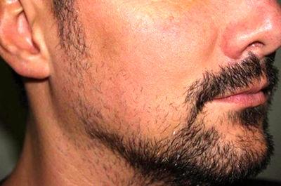 روش های پرپشت کردن ریش و سبیل