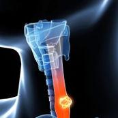 سرطان مری، علل بروز و راه های پیشگیری
