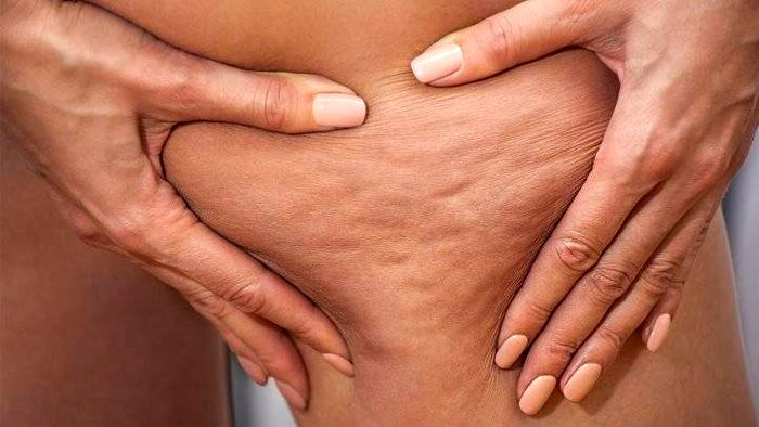 درمان سلولیت بدن در خانه با مواد طبیعی