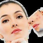 جلوگیری از آکنه و التهاب پوستی قبل، بعد و در حین تمرینات ورزشی