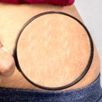 روش های از بین بردن ترک های پوستی