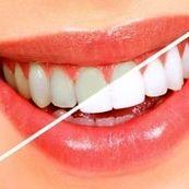 روش خانگی برای جرمگیری دندان ها