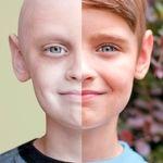 مقدمه ای در مورد بیماری مهلک سرطان