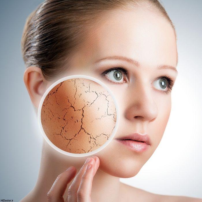 ساختار پوست بدن و آشنایی با آن