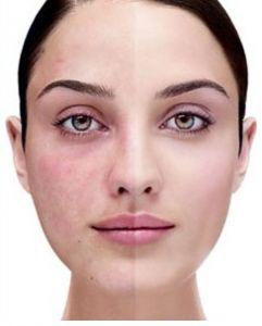 لوازم آرایش مناسب پوست های حساس و مبتلا به اگزما