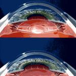 ورم عضله مژگانی(سیکلیت) چشم چیست و چگونه بوجود می آید؟