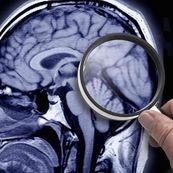 مشاغلی که از شما در برابر بیماری آلزایمر محافظت می کنند