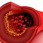 تشخیص و علل بروز تصلیب شریان