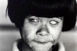 چشمان عجیب و هیولایی این دختر او را  شبیه جن کرده+ عکس