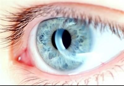 آیا لیزر قادر است رنگ چشم قهوه ای را به آبی تغییر دهد؟