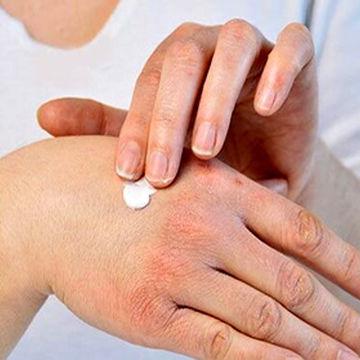 روش های درمان خشکی پوست