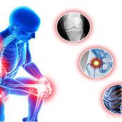تغییرات غضروف و استخوان در آرتروز