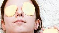 روش های مختلف استفاده از سیب زمینی برای مراقبت از پوست
