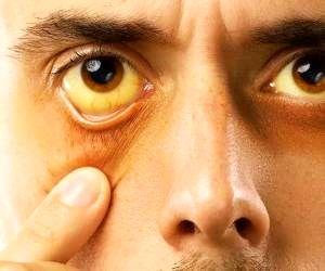 زردی چشم نشانه مشکلات کبدی است