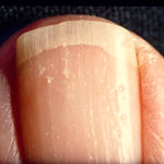آیا پسوریازیس، ناخن را هم تحت تاثیر قرار می دهد؟