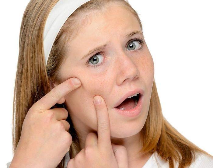 برنامههای مراقبت از پوست در دوران نوجوانی