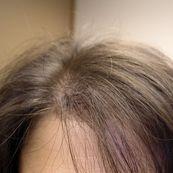 نسبت های عوامل ریزش مو در بین زنان و مردان