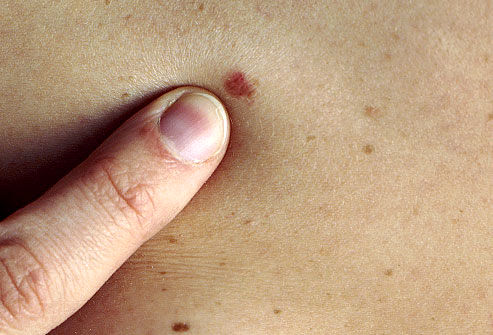 انواع مختلف سرطان پوست چیست؟