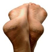 علل خشکی و پینه پاشنه پا
