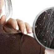 علت اصلی شوره سر را بدانید