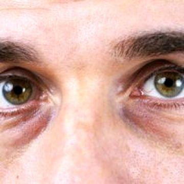 علت سیاهی زیر چشم ها را بدانید