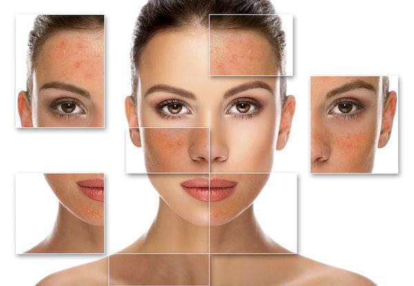 زایل کردن جای لک و آبله در صورت و بدن