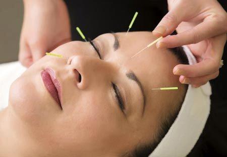 تاثیر طب سوزنی بر جوان سازی پوست را بدانید