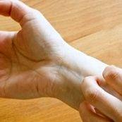 آیا پیتریازیس ورسیکالر یک عفونت قارچی است؟