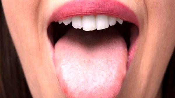 سرطان زبان و ۳ نشانه مهم و خطر ناک برای تشخیص