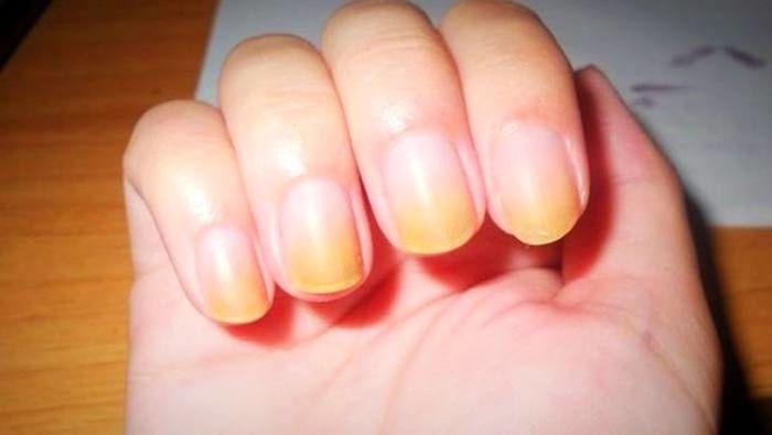 دلایل اصلی زرد شدن ناخن دست و پاها