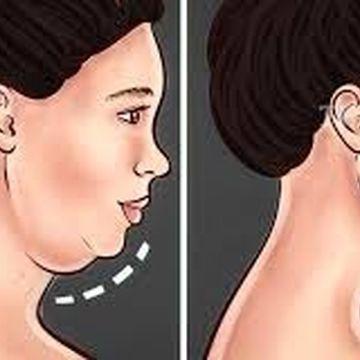 رفع غبغب و داشتن گردنی باریک و چانه ای زاویه دار