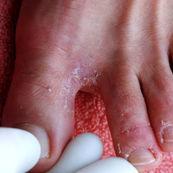 مروری کوتاه بر بیماری های پوستی(۲)