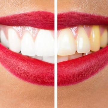 دندان هایی سفید و بدون جرم داشته باشیم