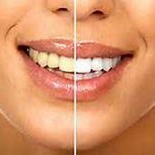 غذاهای مضر پس از سفید کردن دندانها